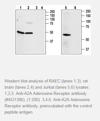 A2A Adenosine Receptor Antibody (Adenosine A2A Receptor/ADORA2a), WB/IHC, 0.2ml