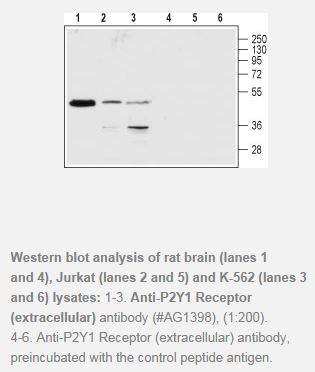 P2Y1 Receptor (extracellular) Antibody (P2RY1), WB, 0.2ml